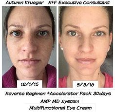 """""""I have never felt MORE confident in my own skin. My 'before' picture surprises me...I didn't realize how dull my skin looked, or how tired my eyes were. I've always had a clear complexion (just not an even one), & assumed my current products from a respected dermatology office were the best of the best. I was proven WRONG!! My complexion is brighter, my skin tone has never been this even, & my pores never this small..."""" Try it: call/text 636-248-4463 or ReaganOglesby@gmail.com to get 10%…"""
