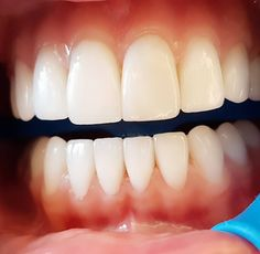 اتحدى العالم ...#smile#natural#veneers#all upper  #no comment.... by dr.joekaram Our Dental Veneers Page: http://www.lagunavistadental.com/services/cosmetic-dentistry/veneers/ Other Cosmetic Dentistry services we offer: http://www.lagunavistadental.com/services/cosmetic-dentistry/ Google My Business: https://plus.google.com/LagunaVistaDentalElkGrove/about Our Yelp Page: http://www.yelp.com/biz/fenton-krystle-dds-laguna-vista-dental-elk-grove-3 Our Facebook Page…