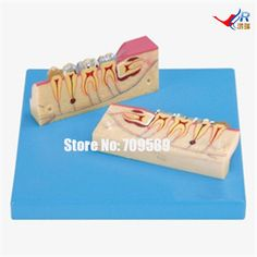 60.00$  Watch here - http://aliias.worldwells.pw/go.php?t=32710517644 - Dissected Model of Teeth Tissue, Dental Care Model 60.00$