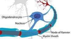 Changes in Teen Brain Structure Provide Clues to Onset of Mental Health Problems