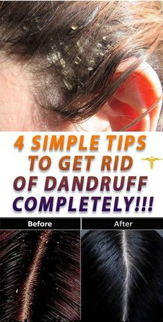 4 SIMPLE TIPS TO GET RID OF DANDRUFF COMPLETELY – Sk/Ms