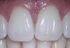Truco para blanquear los dientes para fumadores Leer más en: http://belleza.innatia.com/c-trucos-dientes/a-truco-blanquear-dientes.html