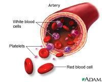Information about myelodysplastic sydrome (MDS), including symptoms, diagnosis, and treatment.