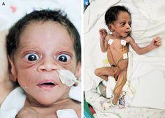 Neonatal Thyrotoxicosis — NEJM