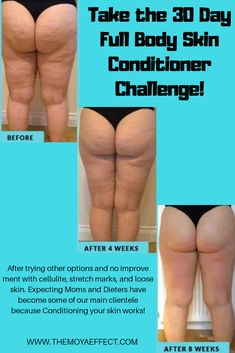 After trying other options and no improvement with cellulite, stretch marks, and loose skin. Expecting Moms and Dieters have become some of our main clientele because Conditioning your skin works! Cellulite Scrub, Cellulite Remedies, Reduce Cellulite, Tighten Loose Skin, Vitamins For Skin, Skin Care Treatments, Acne Treatment, Body Detox, Skin Tightening