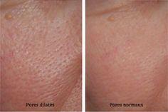 Les pores dilatés est quelque chose de très fréquent parmi la population.