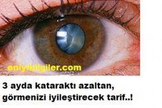 3 ayda kataraktı azaltan görmenizi iyileştirecek tarif