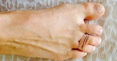 Every Day She Tied Two Of Her Toes With A Rubber Band for high heel pain Beauty Secrets, Beauty Hacks, Health And Beauty, Health And Wellness, Body Hacks, Save Her, Rubber Bands, Natural Medicine, Healthy Tips