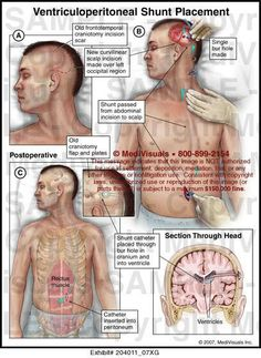 VP shunt (nothing like brain surgery as the very surgery of your life. I'm just terrified. That is all ~Imelda) Intracranial Pressure, Intracranial Hypertension, Chronic Illness, Chronic Pain, Vp Shunt, Pseudotumor Cerebri, Neurological System, Brain Aneurysm, Cerebrospinal Fluid