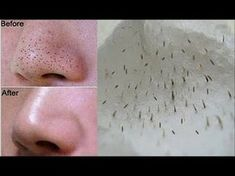 How To Remove Tons Of Blackheads & Whiteheads Instantly! Home Remedies Get Rid Of Blackheads, Pimples, Skin Tag Removal, Hair Removal, Blackhead Remover, Combination Skin, Good Skin, Home Remedies, Health Remedies
