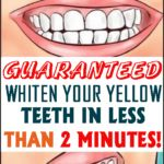 Yellow teeth are very embarrassing, and therefore, don't want to smile and laugh.Luckily, you can have white teeth without spending your money on products that are filled with chemicals and don't give the promised results. Baking Soda Scrub, Baking Soda And Lemon, Swollen Belly, Natural Bleach, Acidic Foods, Smiles And Laughs, Oral Health, Health Facts, Women's Health