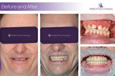 Cazuri before & after dentara Dental Aesthetics, Teeth In A Day, Dental Crowns, Dental Implants, Clinic, Medical, Medical Doctor, Medicine, Med School