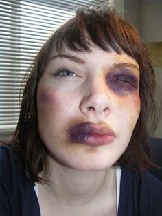 The Injury or Death Wheel can be your best friend when it comes to creating a bruised look. I highly recommend it.