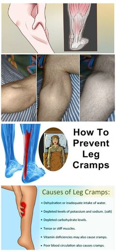 How to prevent leg cramps