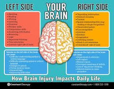 Left side vs right side of brain brain injury or stroke Brain Injury Recovery, Brain Injury Awareness, Stroke Recovery, Brain Science, Brain Gym, Life Science, Computer Science, Tramatic Brain Injury, Stroke Therapy