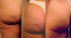 Say Goodbye to Cellulite in 5 Easy Steps