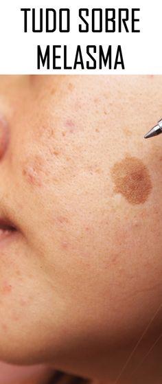 Melasma: tudo sobre as manchas marrons que aparecem no rosto Não tem cura, mas tem como fazer a manchinha ficar 'invisível'