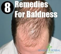 Baldness is the result of hair loss. Though it affects old aged people but can also affect young ones or adults. It may be one of the symptoms associated with baldness. Stress, change in hormonal levels and unhealthy diet can be some of the causes behind baldness. Other causes include deficiency of folic acid and vitamin B6, hereditary factors, stress, weakness etc. It can also lead to distress, embarrassment and anxiety in the affected people.Symptoms associated with baldness include…