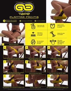 Simple kinesiology taping instructions for Plantar Fasciitis