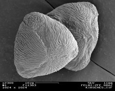 Pollen of a cherry tree; SEM image