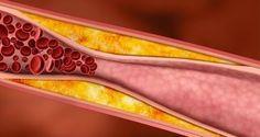 Purifiez vos artères obstruées à l'aide de ce vieux remède naturel allemand