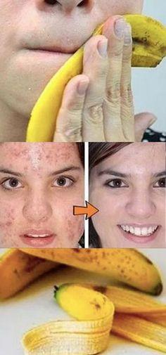 VOCÊ JOGA FORA CASCAS DE BANANA? CONHEÇA 10 GRANDES UTILIDADES DELAS #mascarabanana #mascara #banana #clareamentofacial #espinhas Beauty And The Best, Beauty Tips For Face, Natural Beauty Tips, Natural Skin Care, Beauty Care, Beauty Skin, Banana Face Mask, Facial Tips, Homemade Skin Care