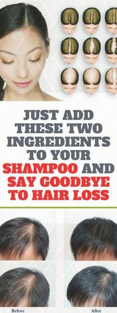 Just Add These Two Ingredients To Your Shampoo And Say Goodbye To Hair Loss Forever - My Tips Health Baking Soda For Hair, Baking Soda Shampoo, Hair Loss Shampoo, Baby Shampoo, Stop Hair Loss, Prevent Hair Loss, Natural Hair Growth, Natural Hair Styles, What Causes Hair Loss