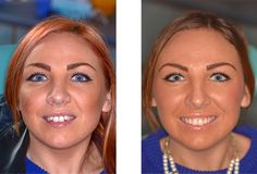 Six Month Smiles at Plymouth City Centre Dental Practice. Get a Hollywood Smile in less than 6 months. Cosmetic dentist accepting new patients today Invisible Braces, Teeth Straightening, Six Month, Straightener, Dental, Hollywood, Dentist Clinic