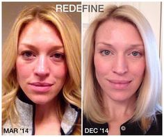 "I'm telling y'all, this is the good stuff!! These products can make even amazing skin look flawless! Here is one of my colleagues, Charla. This is what she had to say... ""These are my results from using our REDEFINE regimen, the AMP MD Roller, the MACRO-E and the Multi-function Eye Cream. I did use a round of REVERSE back in June, but it lightened my son spots so quickly, I moved back into REDEFINE and have continued that regimen ever since. I also use the Microdermabrasion Paste."