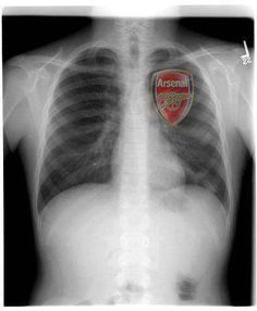 Gunner heart,,,Pity the players have none there,,,lol...;]]]