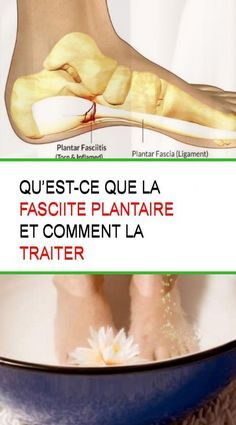 Nouvelles semelles STOP FASCIITE PLANTAIRE Comment retrouver une vie sans douleur maintenant... Info, Learning, Foot Anatomy, Heel Pain, Foot Care, Podiatry, Study, Onderwijs, Studying