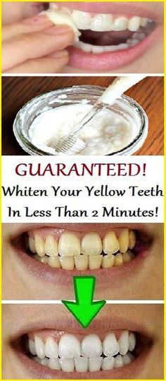 Watch This Video Fantasting All-Natural Home Remedies To Whiten Teeth Ideas. All Time Best All-Natural Home Remedies To Whiten Teeth Ideas. Teeth Whitening Remedies, Natural Teeth Whitening, Whitening Kit, Skin Whitening, Natural Health Tips, Natural Health Remedies, Natural Skin, Natural Facial, Natural Beauty