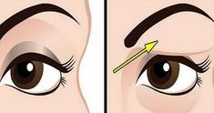 If you are struggling with saggy eyelids, then you must have gone through the frustrating process of applying make-up. The droopy eyelids make you look older, tired, and weary. Saggy Eyelids, Drooping Eyelids, Droopy Eyes, Sagging Skin, Natural Treatments, Natural Remedies, Coconut Oil For Face, Face Yoga, Military Diet