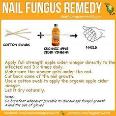 Nail fungus remedy
