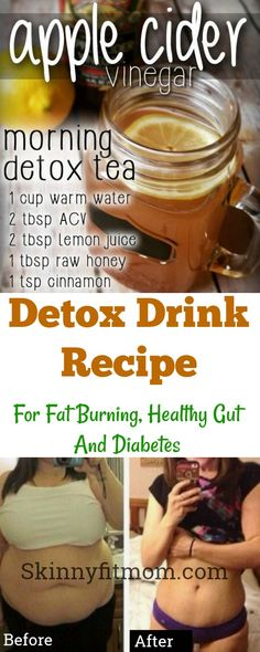 Apple vinegar cider for weight loss and to burn  belly fat. ACV drink will detox your gut and you will lose 10 pounds in 10 days. Try it #applecidervinegar