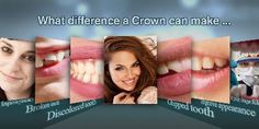 A dental crown is a fast and beautiful way to repair chipped or broken teeth, unattractive large fillings, and more. Learn more about crowns at http://www.quincysmilecenter.com/cosmetic-dentistry/index.html