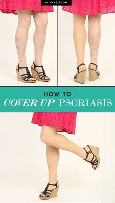 Psoriasis can be a pain to take care of and may make you not want to wear shorts or dresses because of the effects it has on your skin. What if we told you that you could cover it up with a beauty blender? Here's how!