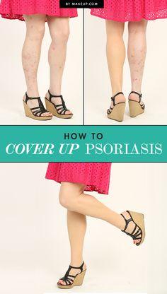 How to Use Makeup to Cover Up Psoriasis.Makeup.com