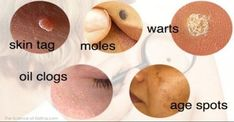 Cure Skin Issues – Skin Tags, Age Spots, Blackheads, Moles, Warts. Naturally! via @https://www.pinterest.com/organichealthco/