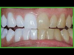 Ela misturou 2 ingredientes e passou nos dentes ➜ Resultado dentes brancos como nunca! - YouTube