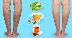 Get Rid Of Varicose Veins 10 Natural Remedies and Exercises to Get Rid of Nasty Varicose Veins Varicose Veins Causes, Varicose Vein Remedy, Get Rid Of Spider Veins, Improve Blood Circulation, Natural Home Remedies, Natural Treatments, Cholesterol, Easy Workouts, The Cure