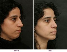 DO YOU NEED A CHIN IMPLANT WITH THAT RHINOPLASTY?
