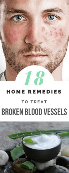 Cure broken capillaries naturally and look better! Get rid of those red blotchy marks on your face or legs with these  medically proven home remedies.