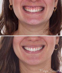 Mais um caso sensacional do @dr.felipe.bezerra ! Repost: TRANSFORMAÇÃO DO SORRISO com Aumento de Coroa  Um Sorriso não é composto apenas de dentes mas sim pela relação deles com os lábios com a gengiva e aspectos particulares que cada rosto tem. --- Há um fenômeno chamado de ERUPÇÃO PASSIVA ALTERADA em que no período de erupção dentária a migração dos tecidos periodontais não ocorre da forma correta e assim parte da Coroa Dentária fica coberta por tecido ósseo e/ou gengival. O SORRISO então…