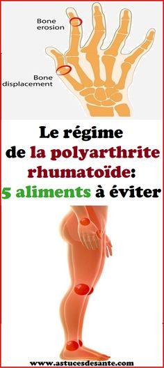 Le régime de la polyarthrite rhumatoïde: 5 aliments à éviter #régime #alimentation #polyarthriterhumatoïde #astucessanté Nutrition, Rheumatoid Arthritis, Foods To Avoid, Health Care, Natural Remedies
