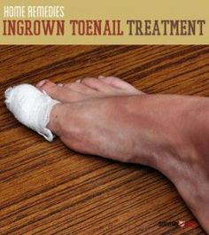 Home Remedies for an Ingrown Toenail | The Homestead Survival