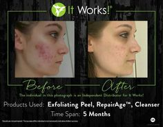 These amazing products offer amazing results! Check it out --> www.dianascloud.itworks.com