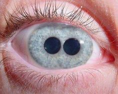 The Pupula duplex is a medical oddity that is characterized by having two irises/ pupils in each eyeball.