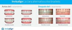Invisalign Valencia - Ortodoncia invisible Valencia