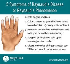 Raynaud's: Symptoms, causes, treatments & preventing flare-ups What Causes Arthritis, Juvenile Arthritis, Rheumatoid Arthritis Treatment, Types Of Arthritis, Raynaud's Disease Symptoms, Autoimmune Disease, Raynaud's Symptoms, Reynauds Syndrome, Nurse Humor